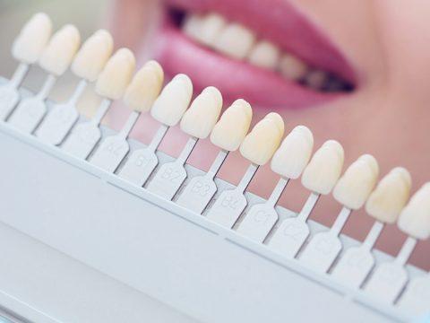 Sartori Odontologia Clareamento Dental